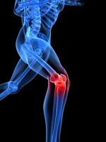 DO YOU HAVE KNEE PAIN OR STIFFNESS??