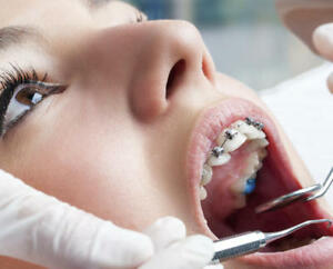 Offering Best Dentist in Coquitlam at Reasonable Price
