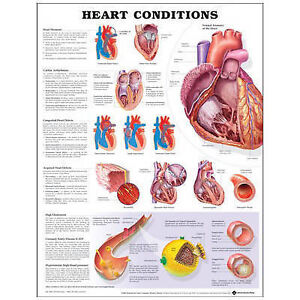 HEART CONDITIONS POSTER (66x51cm) ANATOMICAL CHART NEW EDUCATIONAL