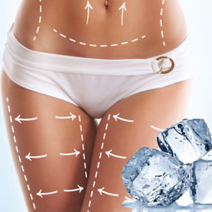 Arctique Coolshape MODELS REQUIRED for FAT FREEZING Woolloomooloo Inner Sydney Preview