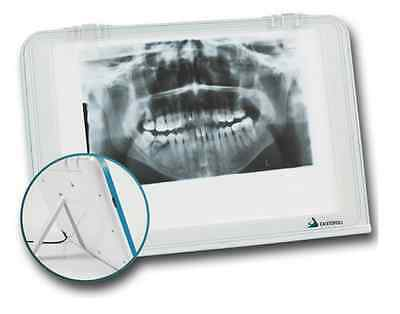 Dental X-ray Film Viewer Diagnostic Imaging Led Light Source Wall Mounting Desk