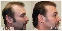 PRP TREATMENT FOR HAIR LOSS $1800