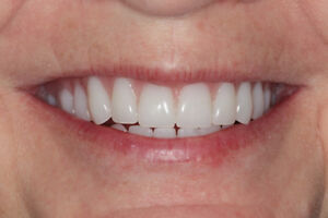 Full Dentures $250 and Partial Dentures $350 in Toronto