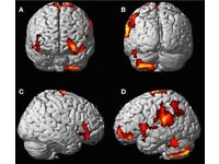 Participants Wanted! Brain imaging study. PAID!