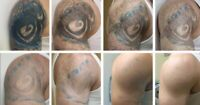 Tattoo Removal. Come and see why we are superior at removing tat