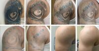 """LaserTattoo Removal """"Hometown Clinic """"Leader in Tattoo Removal"""""""