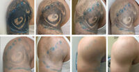 "Tattoo Removal by Hometown Laser ""The leader in tatt removal"""