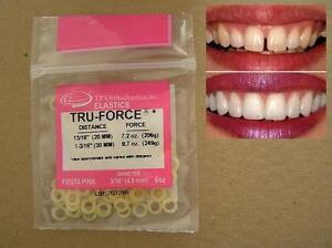 CLOSE-THE-GAP-IN-YOUR-TEETH-WITH-PROFESSIONAL-ORTHODONTIC-ELASTIC-BANDS-8-7oz