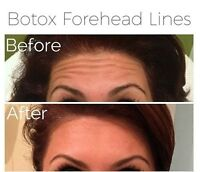 *$75/10 units BOTOX, Holiday Promotion conti. on demand