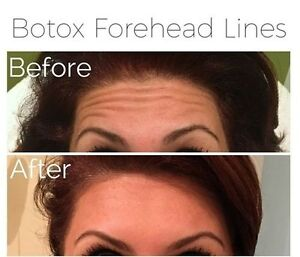 *$99/15 units BOTOX Summer Promotion Cont. [On demand]