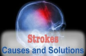 What causes STROKES AND HEART DISEASE?