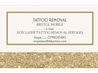 Non laser tattoo removal!