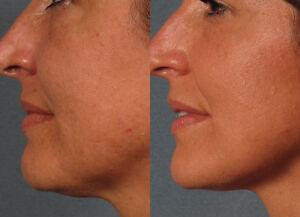 NEW-GEL-TCA-Facial-Peel-30-STRENGTH-Tattoos-Stretch-Marks