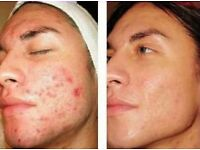 Microdermabrasion treatment Christmas offer £30.00!(usually £75)