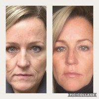 Botox, Fillers, PRP, Non-Surgical Facelift, Varicose Veins