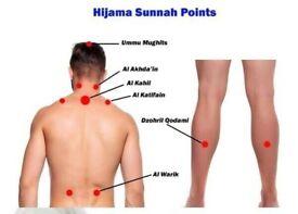 Ilford Cupping Medic - health/massage/detox/hijama/hijamah/cupping