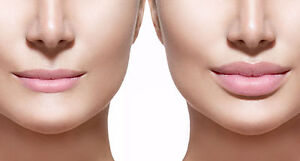 Spring Promotions for Botox and Fillers!!!