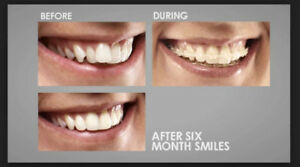 Promotions on dental procedures, whitening, braces, Implants