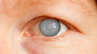 Glaucoma patient looking for help