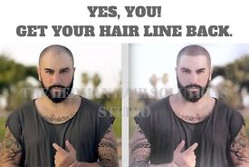 Hair And Scalp Models Required For Hair Loss Specialist