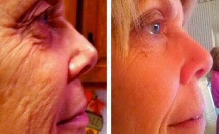 Anti Ageing Vitamins and skin care | Business for sale Australia Redland Area Preview