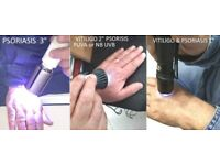 Medical lamps for Vitiligo and Psoriasis