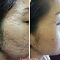 Acne/acne scarring treatments 200.00!