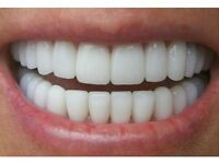 MOBILE LASER TEETH WHITENING £69 OR 2 PEOPLE FOR £120 - SPECIAL OFFER