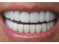 MOBILE LASER TEETH WHITENING £59 OR 2 PEOPLE FOR £99
