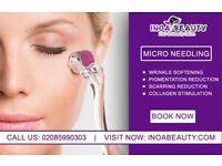 Micro Needling (Collagen Therapy) AT Inoa Beauty Salon