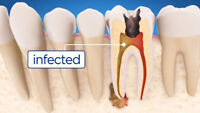 Root Canal Treatment Mississauga | AIMS Dentistry
