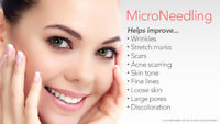 Acne scar removing microneedling treatment$175
