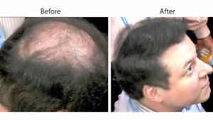 CABOKI Medium Brown Hair Fibers! Instant Hair Loss Solution!