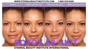 Botox And Fillers | Kijiji in Alberta  - Buy, Sell & Save with