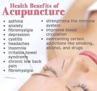Acupuncture for your health needs