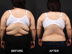 LIPO LASER REMOVE FAT INCHES OFF WAIST THIGHS AND MORE