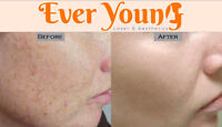 Pigmentation Treatment (Ladies) #EverYoung GET EXTRA30%OFF