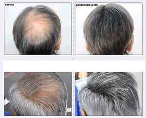 Solution pour la perte de cheveux / Hair Loss Solution