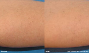promotion - full body laser hair removal - Soprano - Alma