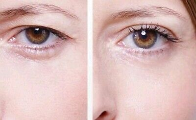 100 Magic Instant Easy Anti Ageing Upper Eyelid Eye Lift Strips Eyelid Tape