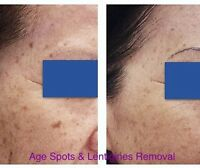 Age Spots & Brown Spots & Freckles Treatments - Sama Skincare