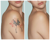 """Tattoo Removal by Hometown Spa """"The leader in tatt removal"""""""