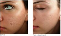 Acne scar microneedling treatment , and other skin services