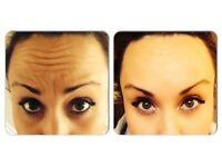 ANTI-WRINKLE INJECTIONS ***OFFER***