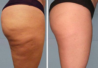 Buy 1 get 2 free!Hot Anti Cellulite  Slimming Gel Chilli & oils 75ml Burn Fat