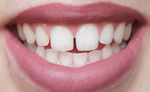 Whitening Toothpaste that works!