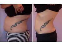 NRG LipoSculpt Lose 2-5inches after 1st treatment