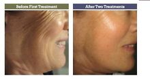 Non injectible facial filler  system  DIY Mosman Mosman Area Preview