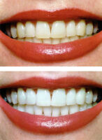 TEETH WHITENING PROFESSIONAL TREATMENT AT SI SALON & SPA $99