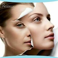 **$350/syringe Dermal Filler, Christmas Promotion